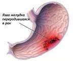 Рак желудка. Лечение